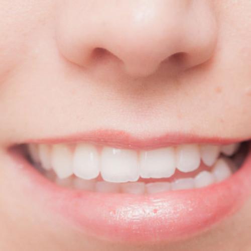 歯の矯正のトップ画像